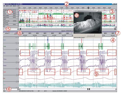 SOMNO® screen Plus e EEG 10-20 Neuroriabilitazione e Robotica