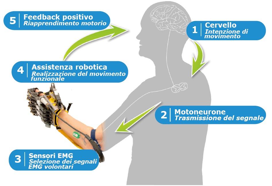 Hand of Hope (Rehab Robotics) Neuroriabilitazione e Robotica